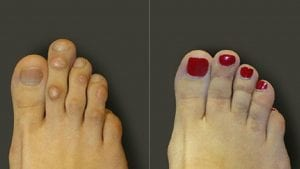 Foot & Ankle hammer toe 2