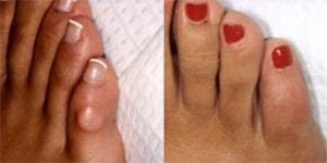 Foot & Ankle hammer toe