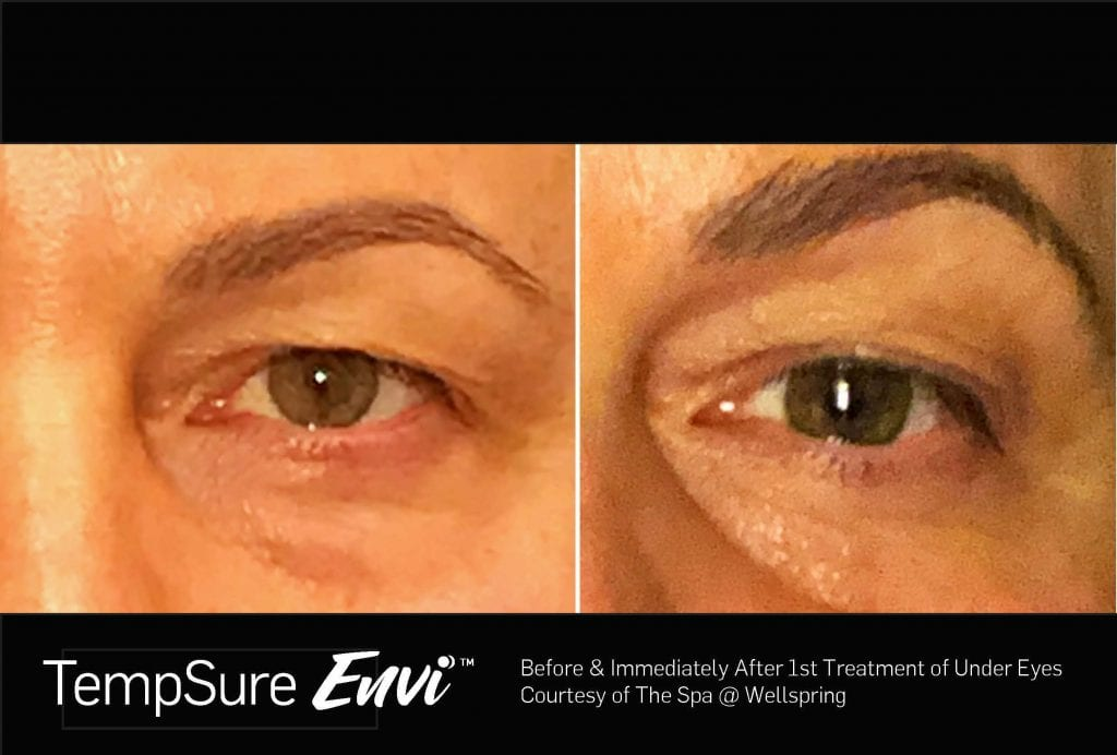 TempSure Envi Before and After Custom Image - Wellspring Updated JPEG